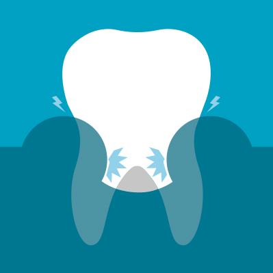 symptoms-of-gum-problems-2.jpg